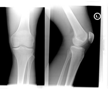 X-ray of left knee